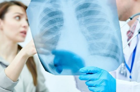 В Армении отметили всемирный день борьбы с пневмонией
